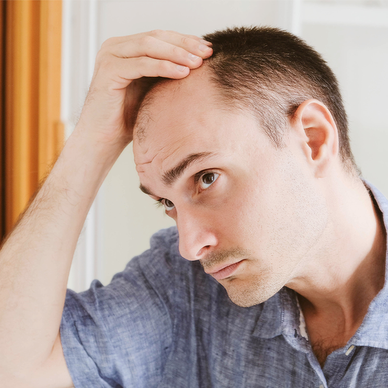 low testosterone and hair loss, high testosterone and body hair